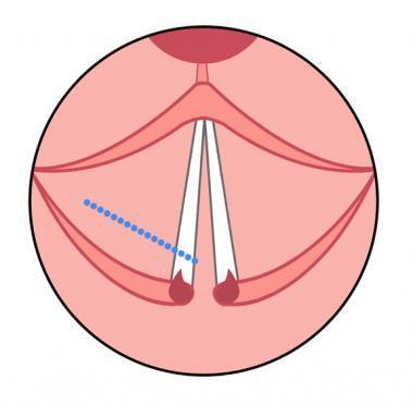 显示cordotomy切口的图(蓝色加点li